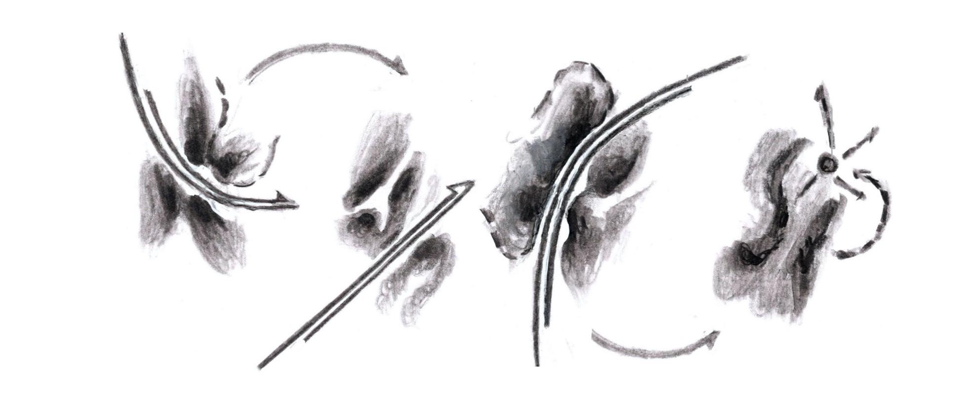"""Η έννοια του """"Μπολιάσματος"""" στη συνθετική διαδικασία"""